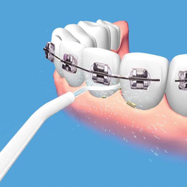 Dụng Cụ Vệ Sinh Răng Power Floss